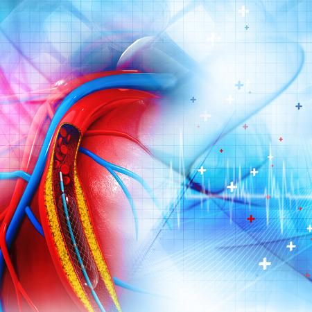 unnecessary heart procedures